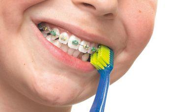 Fiksni ortodontski aparat i pravilna oralna higijena